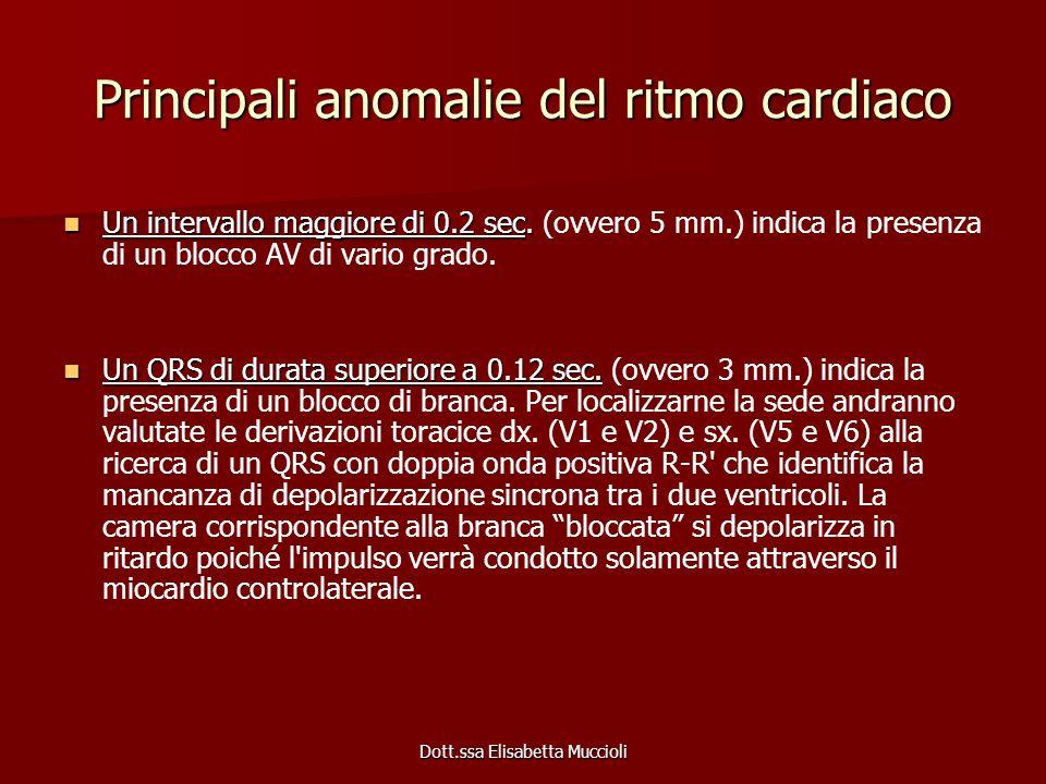 Principali anomalie del ritmo cardiaco