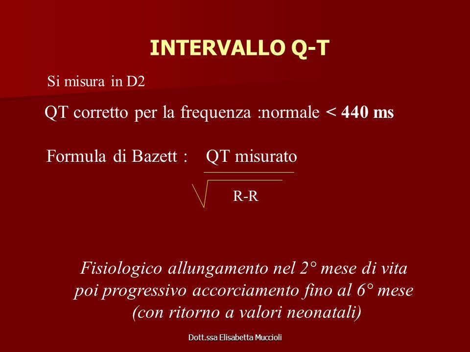 INTERVALLO Q-T Formula di Bazett : QT misurato