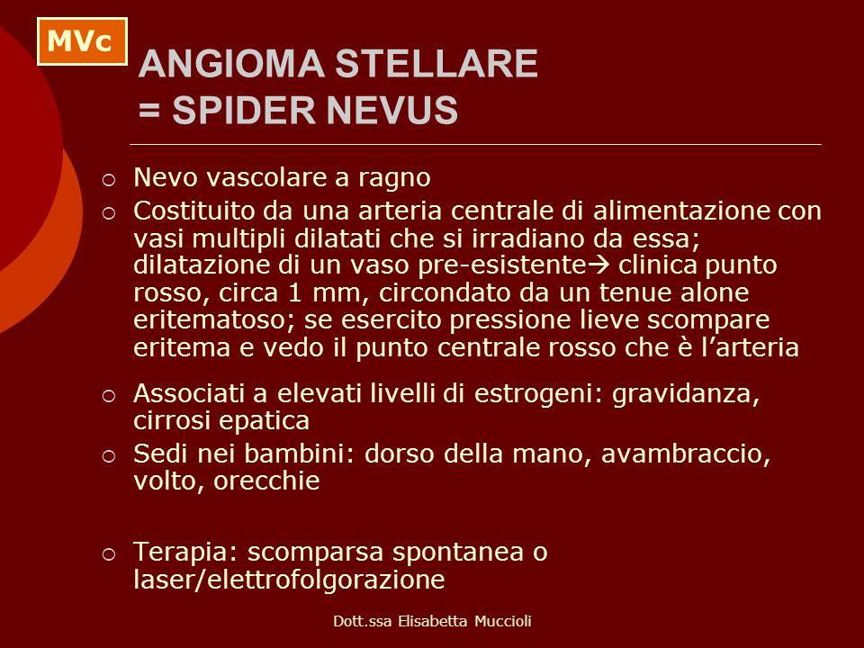 ANGIOMA STELLARE = SPIDER NEVUS