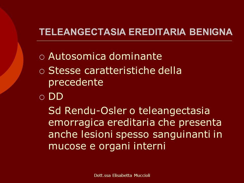 TELEANGECTASIA EREDITARIA BENIGNA