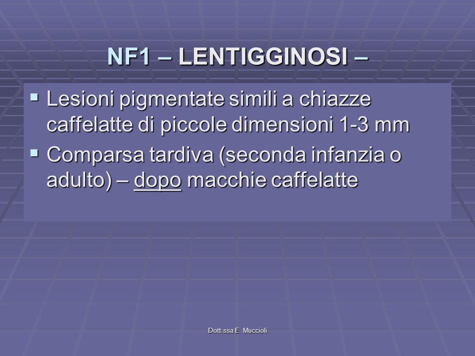 NF1 – LENTIGGINOSI – Lesioni pigmentate simili a chiazze caffelatte di piccole dimensioni 1-3 mm.