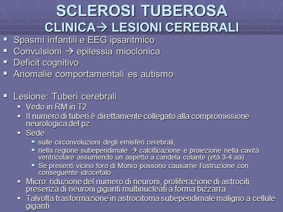 SCLEROSI TUBEROSA CLINICA LESIONI CEREBRALI