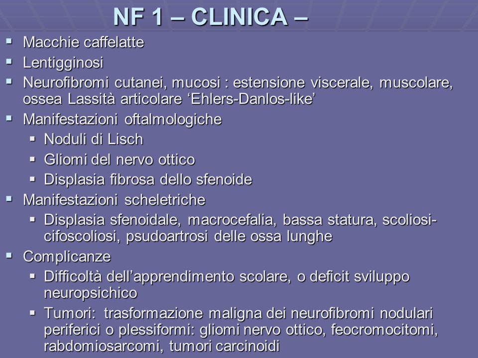 NF 1 – CLINICA – Macchie caffelatte Lentigginosi
