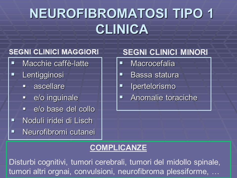 NEUROFIBROMATOSI TIPO 1 CLINICA