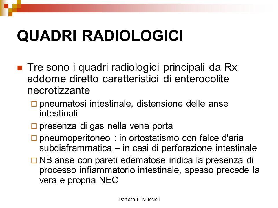 QUADRI RADIOLOGICI Tre sono i quadri radiologici principali da Rx addome diretto caratteristici di enterocolite necrotizzante.