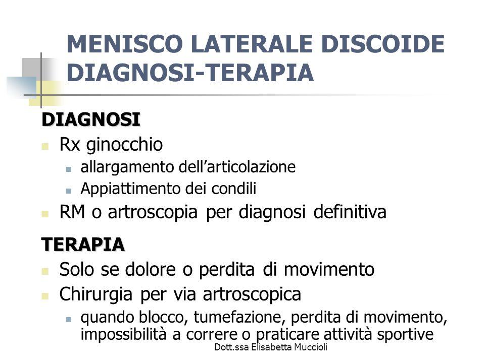 MENISCO LATERALE DISCOIDE DIAGNOSI-TERAPIA