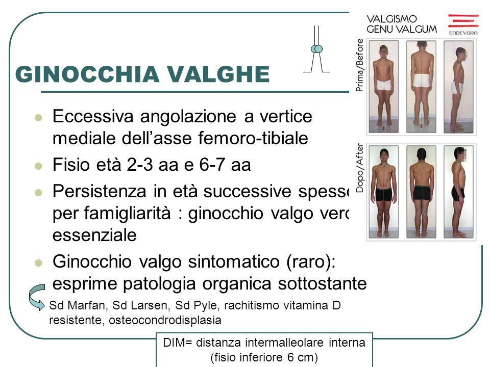GINOCCHIA VALGHE Eccessiva angolazione a vertice mediale dell'asse femoro-tibiale. Fisio età 2-3 aa e 6-7 aa.
