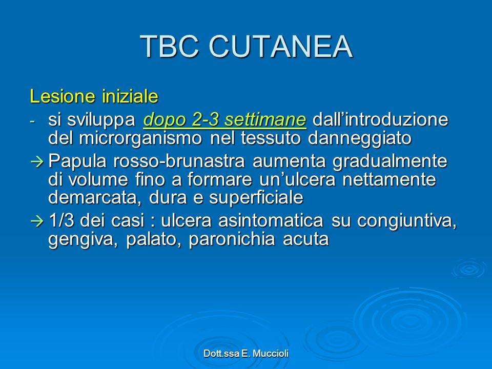 TBC CUTANEA Lesione iniziale