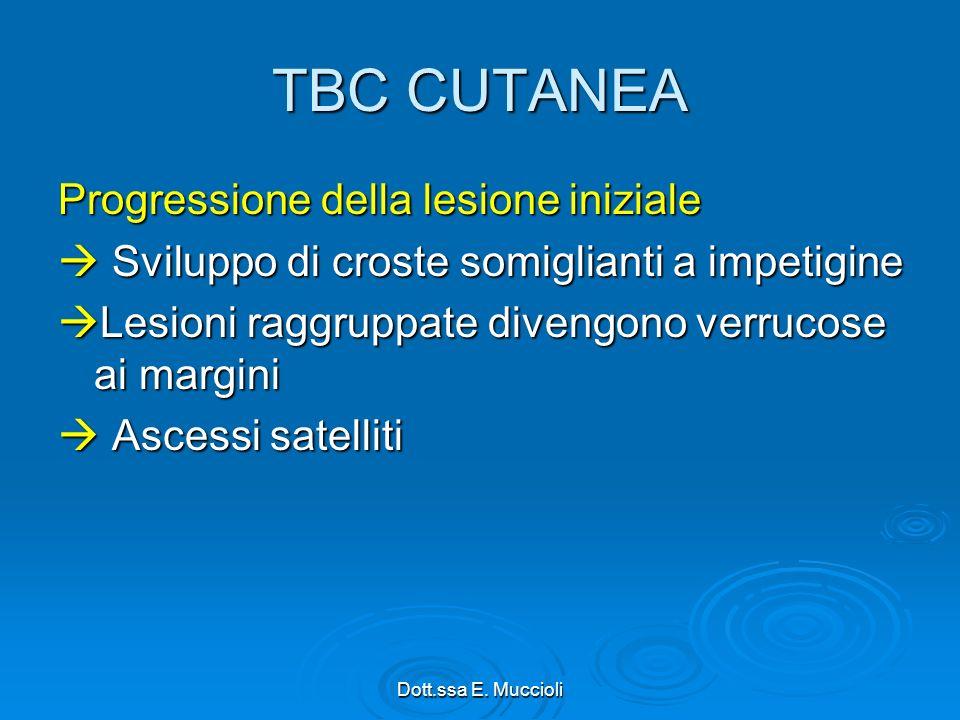 TBC CUTANEA Progressione della lesione iniziale