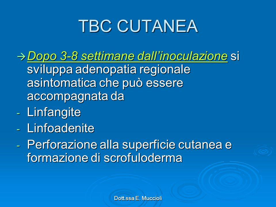 TBC CUTANEA Dopo 3-8 settimane dall'inoculazione si sviluppa adenopatia regionale asintomatica che può essere accompagnata da.
