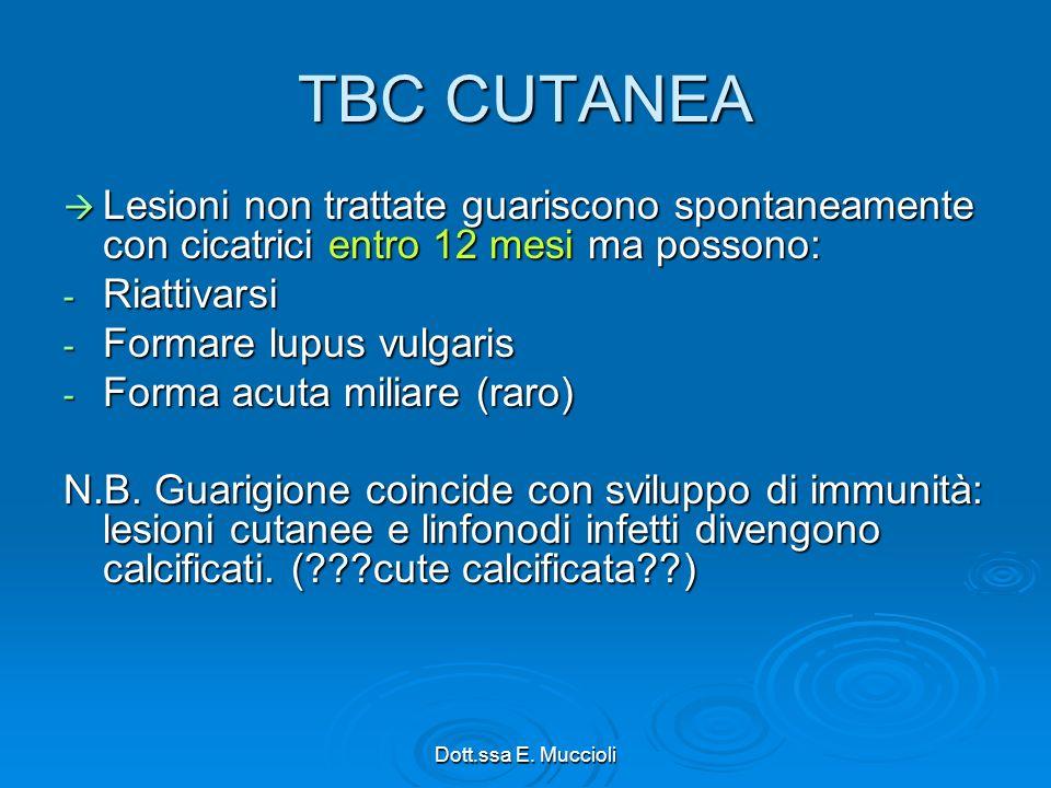 TBC CUTANEA Lesioni non trattate guariscono spontaneamente con cicatrici entro 12 mesi ma possono: Riattivarsi.