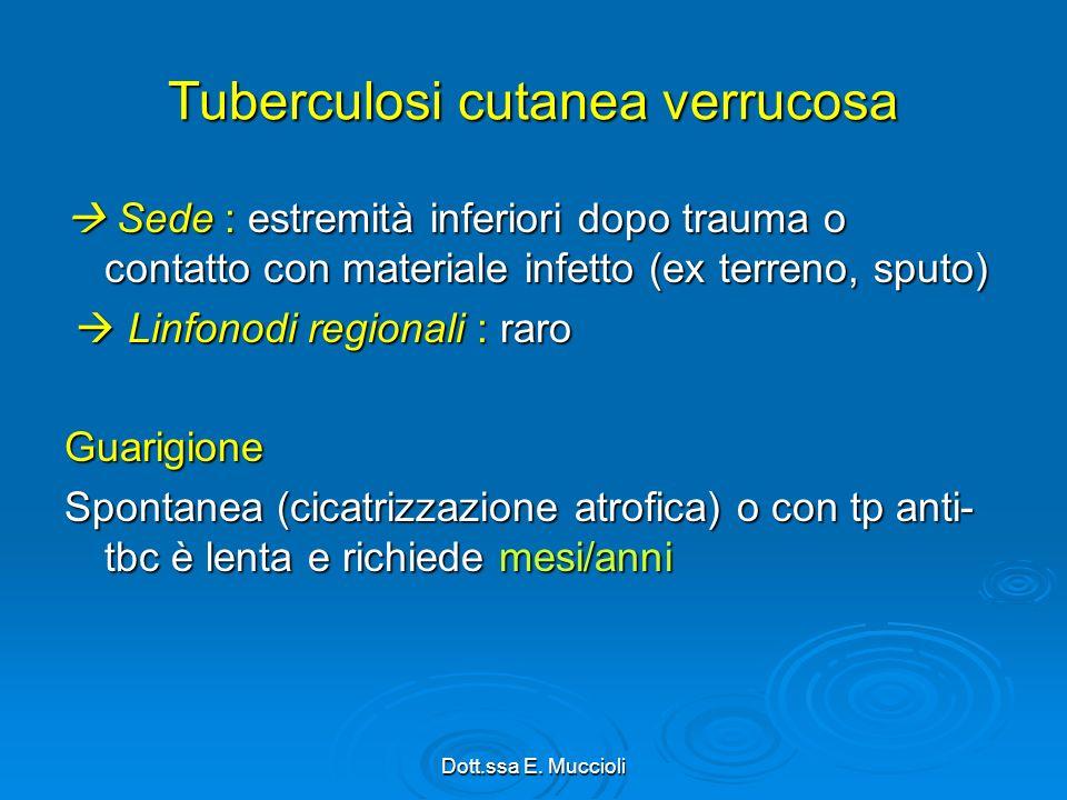 Tuberculosi cutanea verrucosa