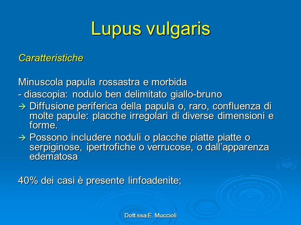 Lupus vulgaris Caratteristiche Minuscola papula rossastra e morbida