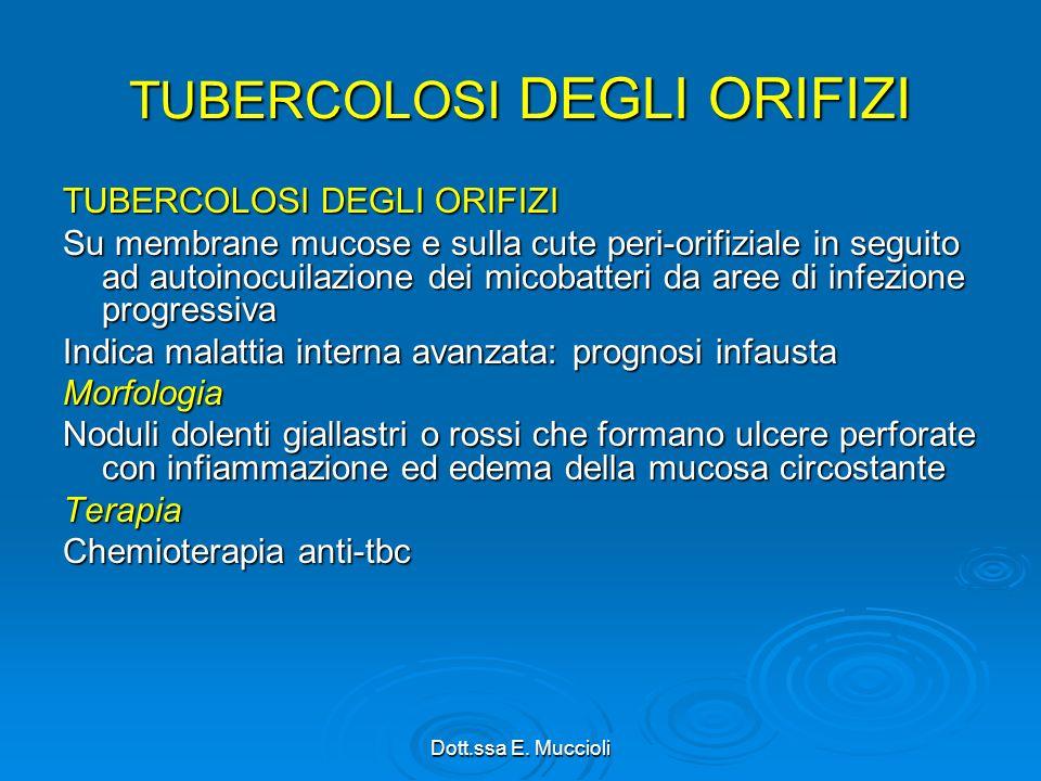 TUBERCOLOSI DEGLI ORIFIZI