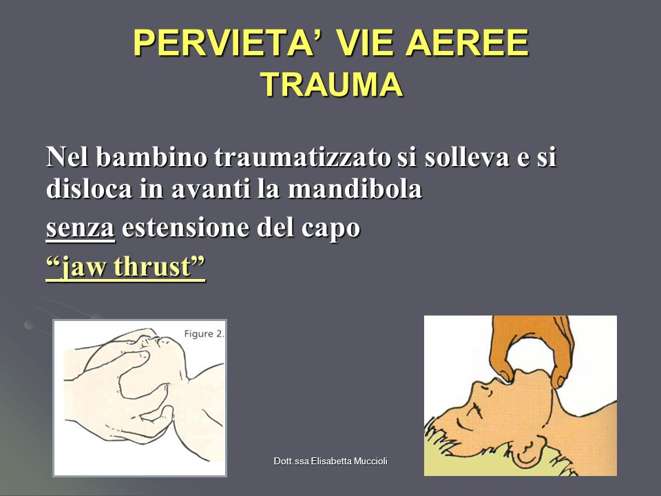 PERVIETA' VIE AEREE TRAUMA