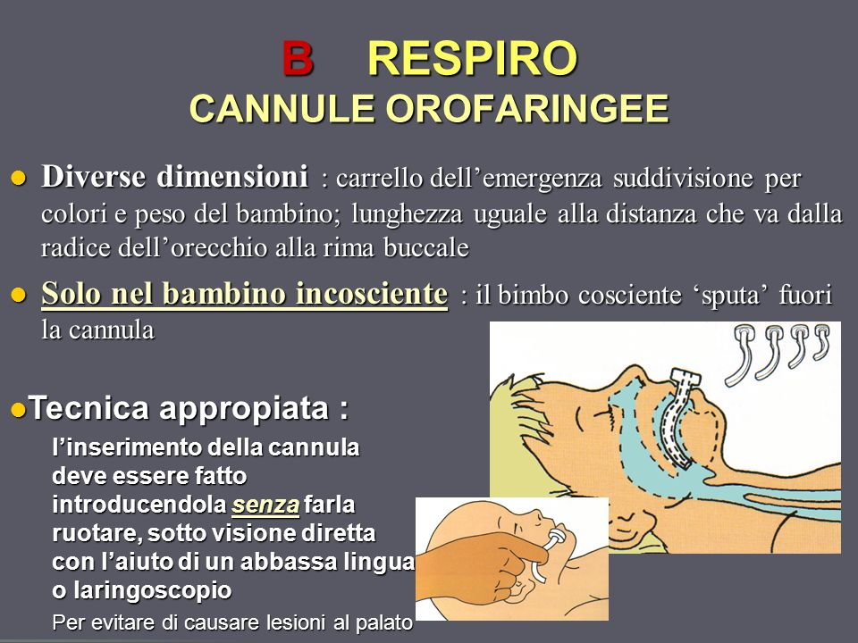 B RESPIRO CANNULE OROFARINGEE
