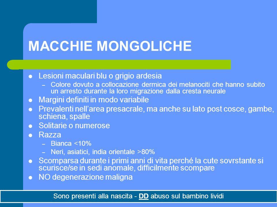 MACCHIE MONGOLICHE Lesioni maculari blu o grigio ardesia