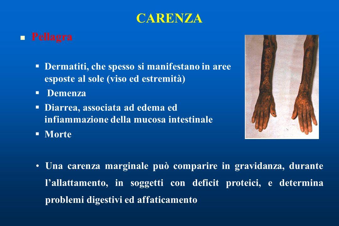 CARENZA Pellagra. Dermatiti, che spesso si manifestano in aree esposte al sole (viso ed estremità)