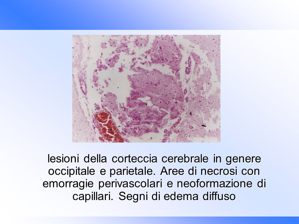 lesioni della corteccia cerebrale in genere occipitale e parietale
