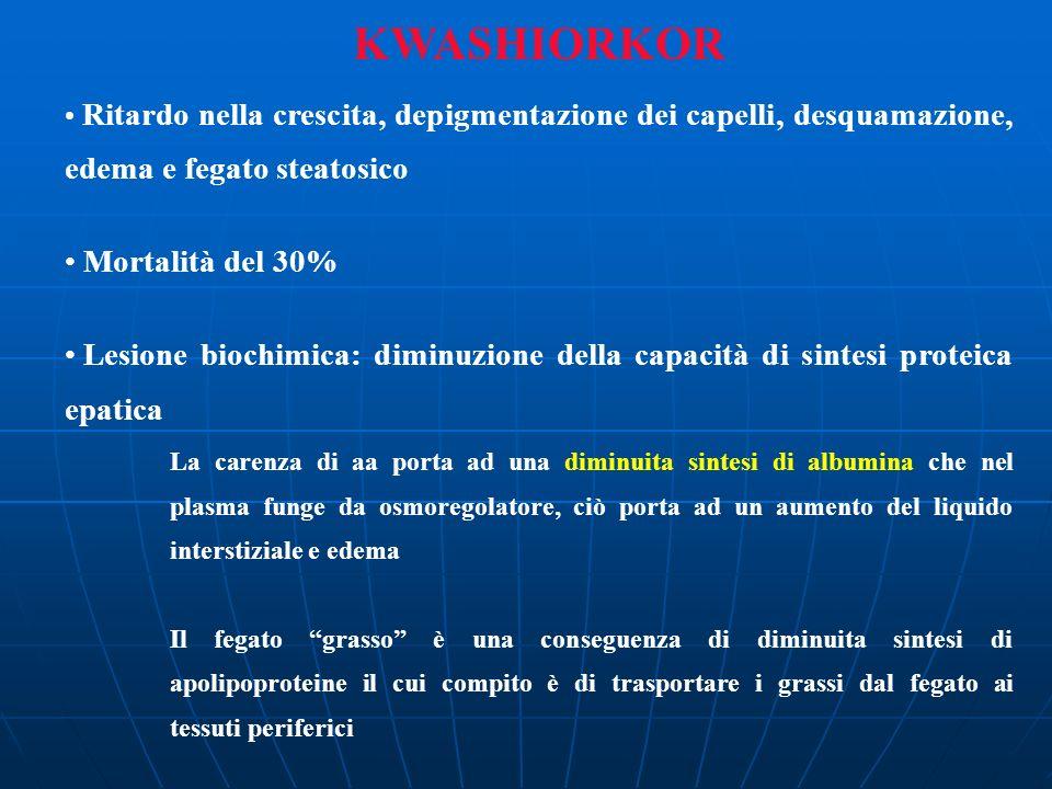 KWASHIORKOR Mortalità del 30%