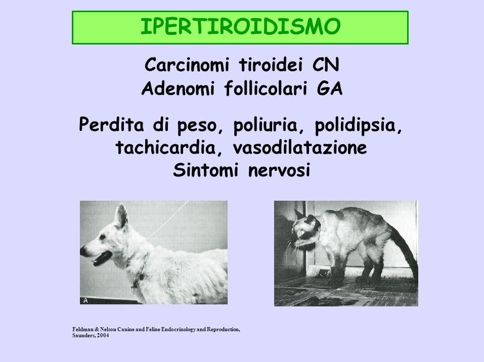 IPERTIROIDISMO Adenomi follicolari GA