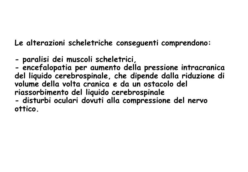 Le alterazioni scheletriche conseguenti comprendono: - paralisi dei muscoli scheletrici, - encefalopatia per aumento della pressione intracranica del liquido cerebrospinale, che dipende dalla riduzione di volume della volta cranica e da un ostacolo del riassorbimento del liquido cerebrospinale - disturbi oculari dovuti alla compressione del nervo ottico.