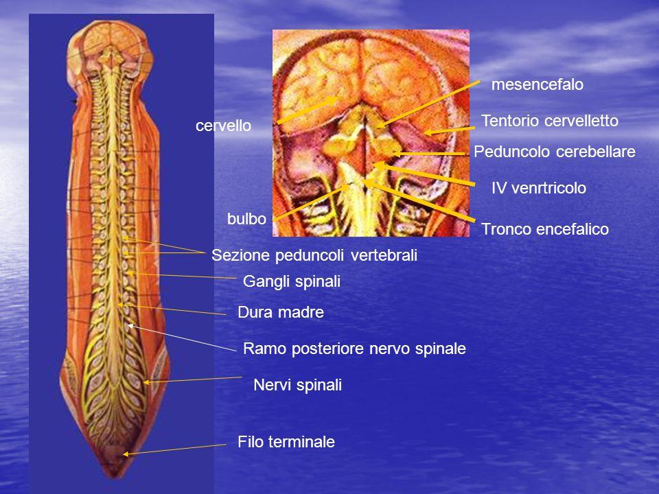 mesencefalo Tentorio cervelletto. cervello. Peduncolo cerebellare. IV venrtricolo. bulbo. Tronco encefalico.