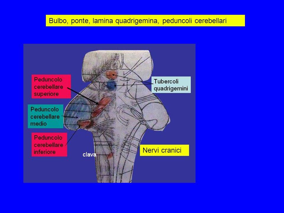 Bulbo, ponte, lamina quadrigemina, peduncoli cerebellari