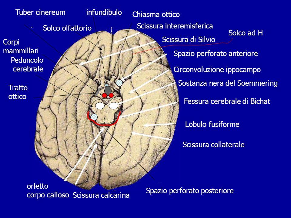 Scissura interemisferica