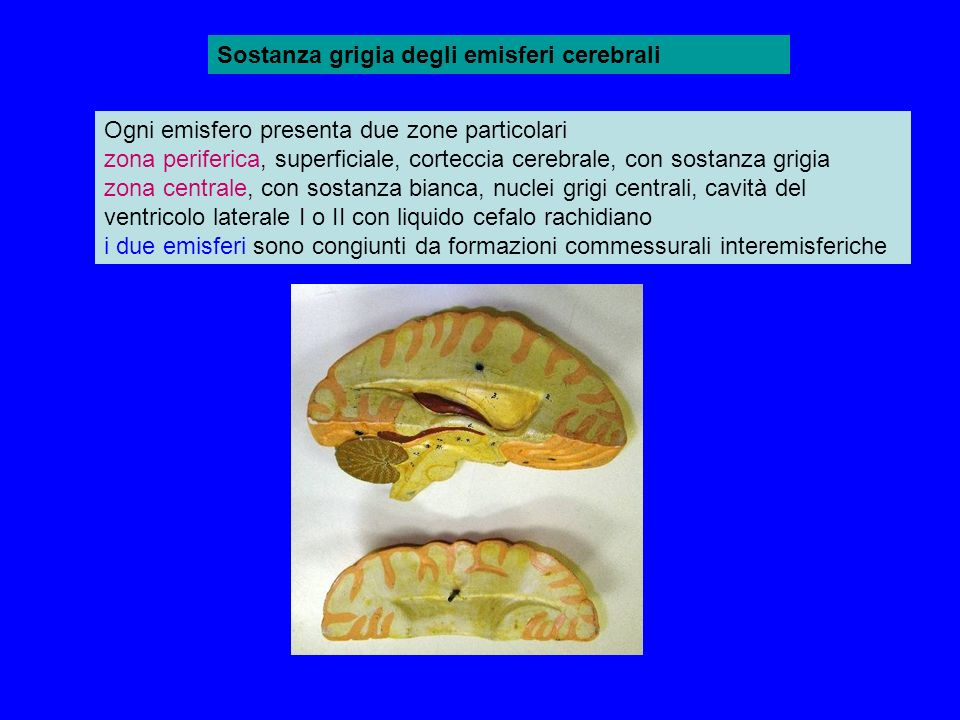 Sostanza grigia degli emisferi cerebrali