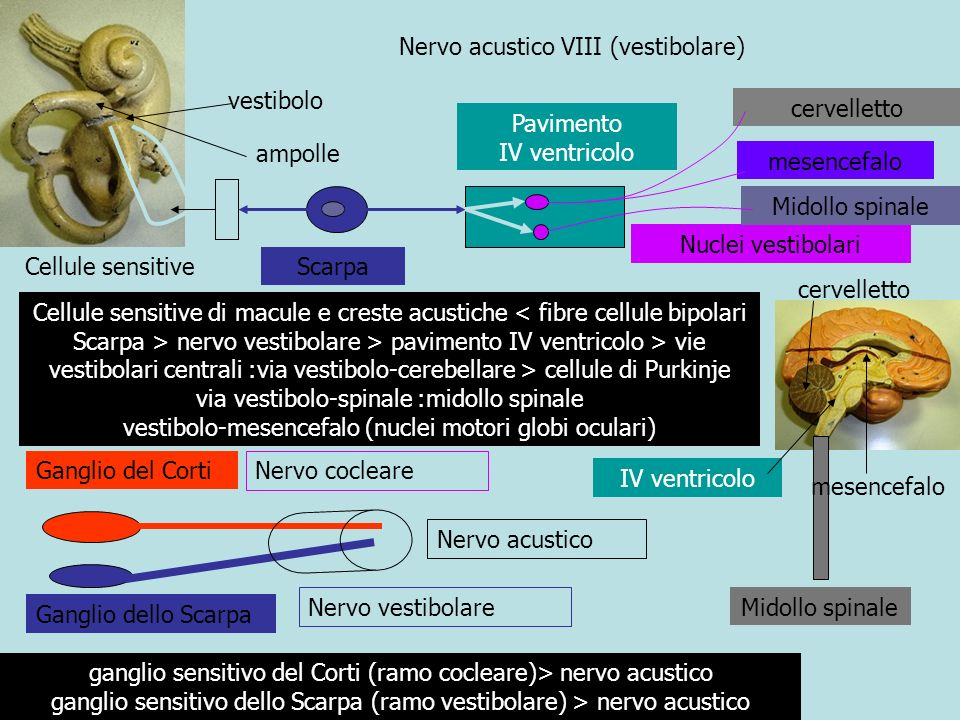 Pavimento IV ventricolo