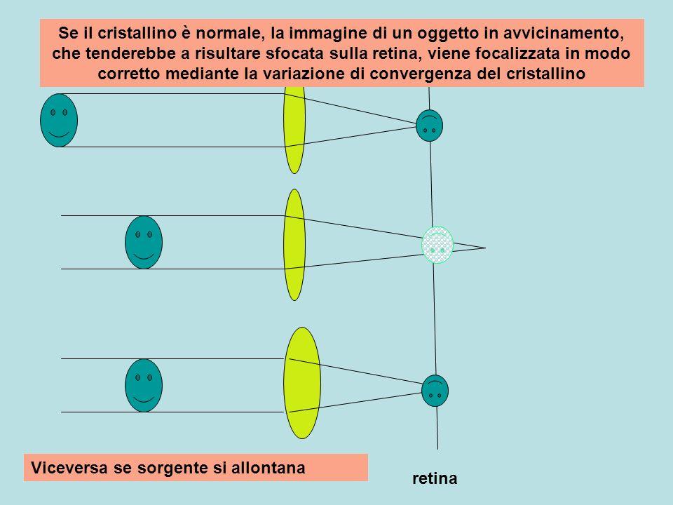 Se il cristallino è normale, la immagine di un oggetto in avvicinamento, che tenderebbe a risultare sfocata sulla retina, viene focalizzata in modo corretto mediante la variazione di convergenza del cristallino