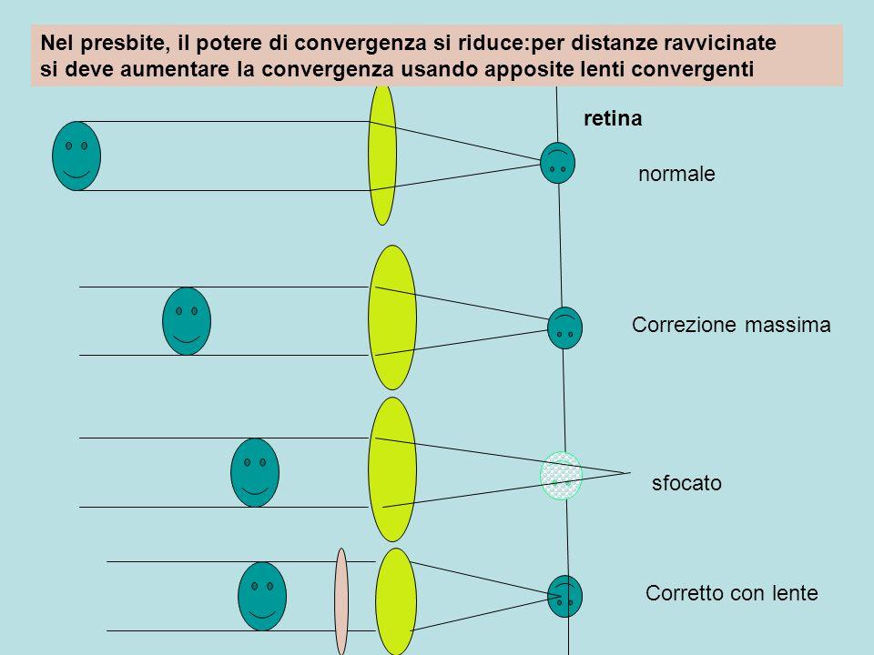 Nel presbite, il potere di convergenza si riduce:per distanze ravvicinate si deve aumentare la convergenza usando apposite lenti convergenti