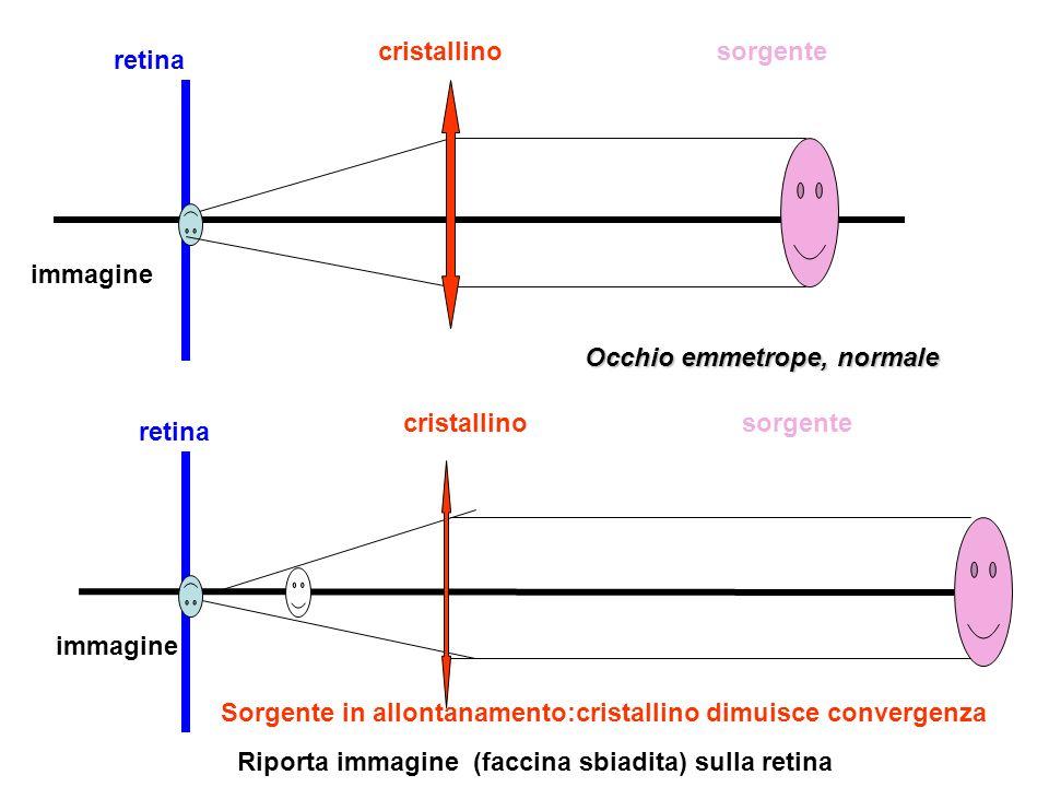 cristallino sorgente. retina. immagine. Occhio emmetrope, normale. cristallino. sorgente. retina.