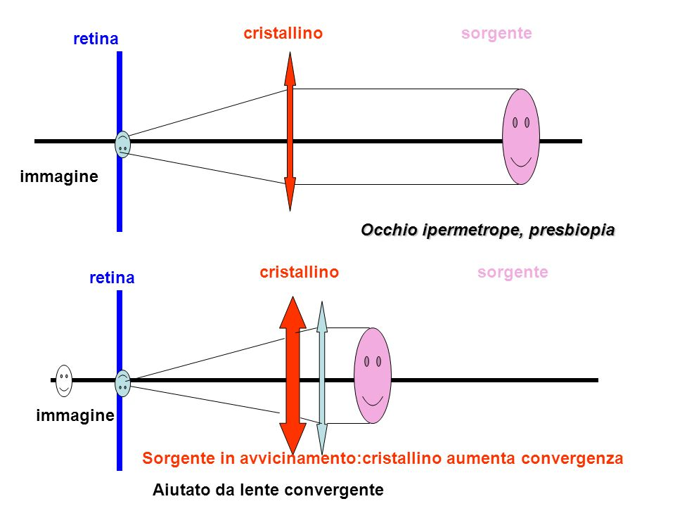 cristallino sorgente. retina. immagine. Occhio ipermetrope, presbiopia. cristallino. sorgente.