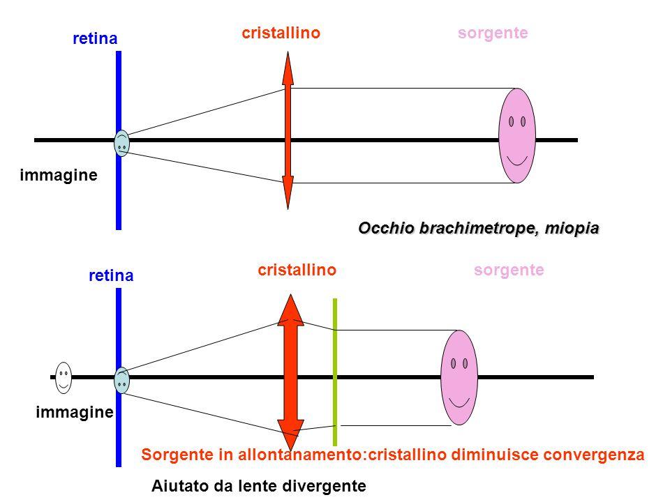 cristallino sorgente. retina. immagine. Occhio brachimetrope, miopia. cristallino. sorgente. retina.