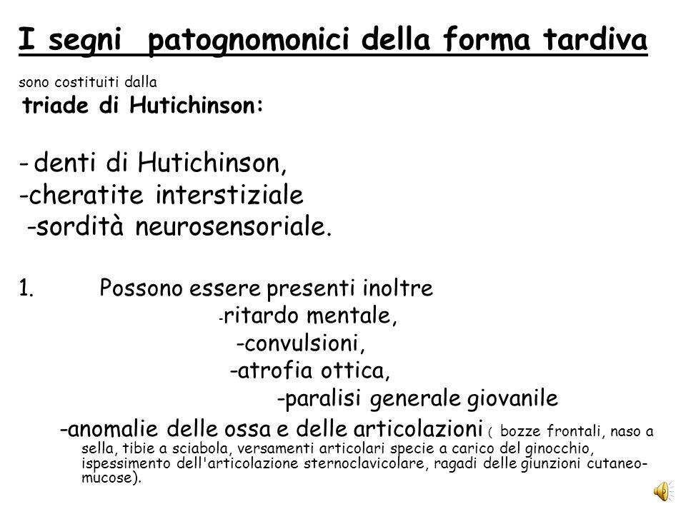 I segni patognomonici della forma tardiva