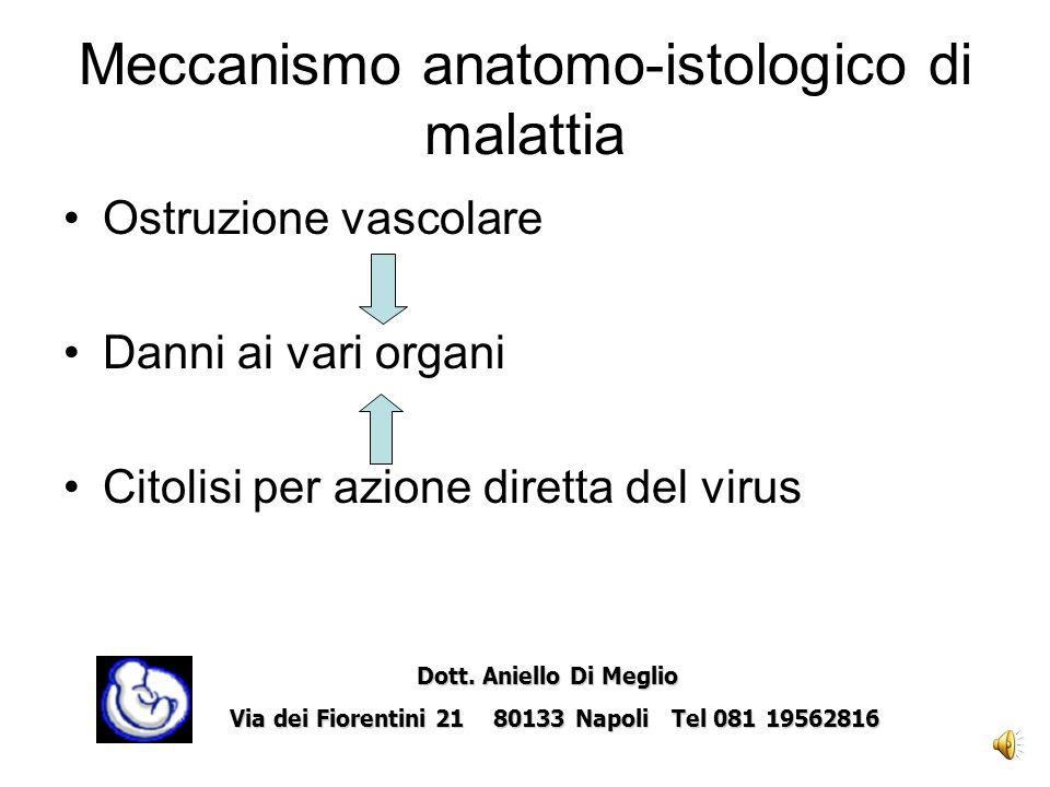 Meccanismo anatomo-istologico di malattia