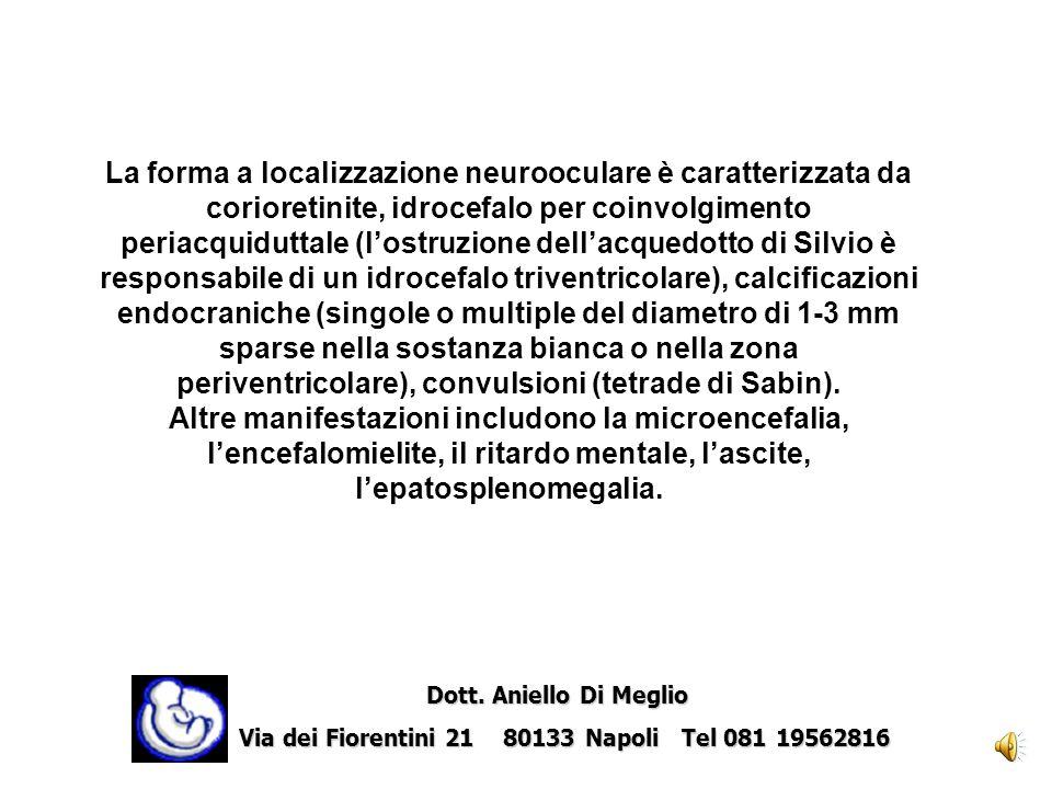 La forma a localizzazione neurooculare è caratterizzata da corioretinite, idrocefalo per coinvolgimento periacquiduttale (l'ostruzione dell'acquedotto di Silvio è responsabile di un idrocefalo triventricolare), calcificazioni endocraniche (singole o multiple del diametro di 1-3 mm sparse nella sostanza bianca o nella zona periventricolare), convulsioni (tetrade di Sabin). Altre manifestazioni includono la microencefalia, l'encefalomielite, il ritardo mentale, l'ascite, l'epatosplenomegalia.