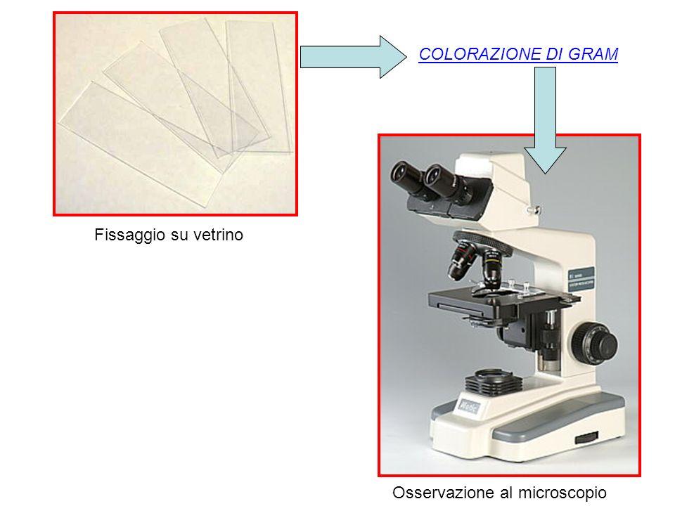 COLORAZIONE DI GRAM Fissaggio su vetrino Osservazione al microscopio