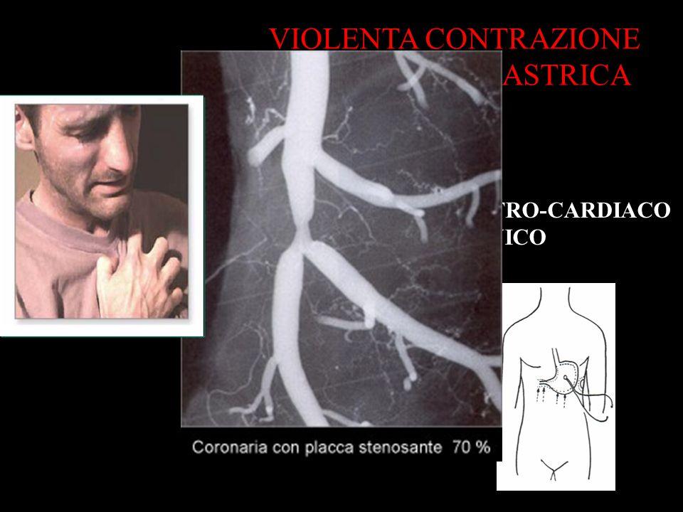 RIFLESSO GASTRO-CARDIACO