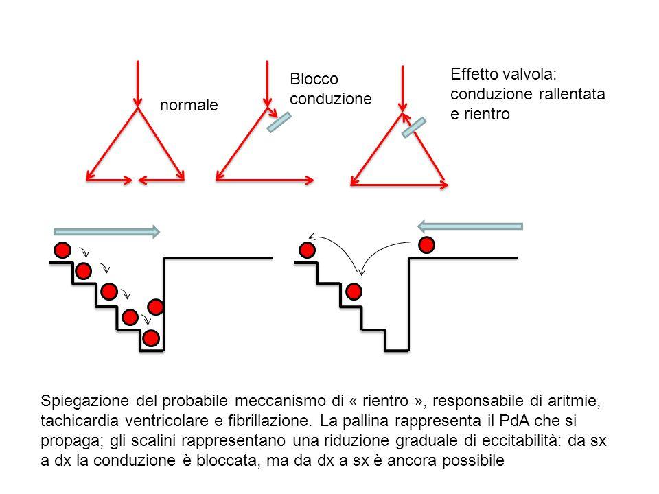 normale Blocco conduzione. Effetto valvola: conduzione rallentata e rientro.