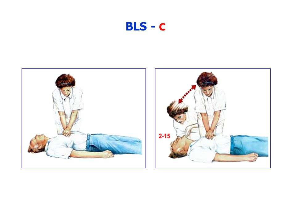 BLS - C