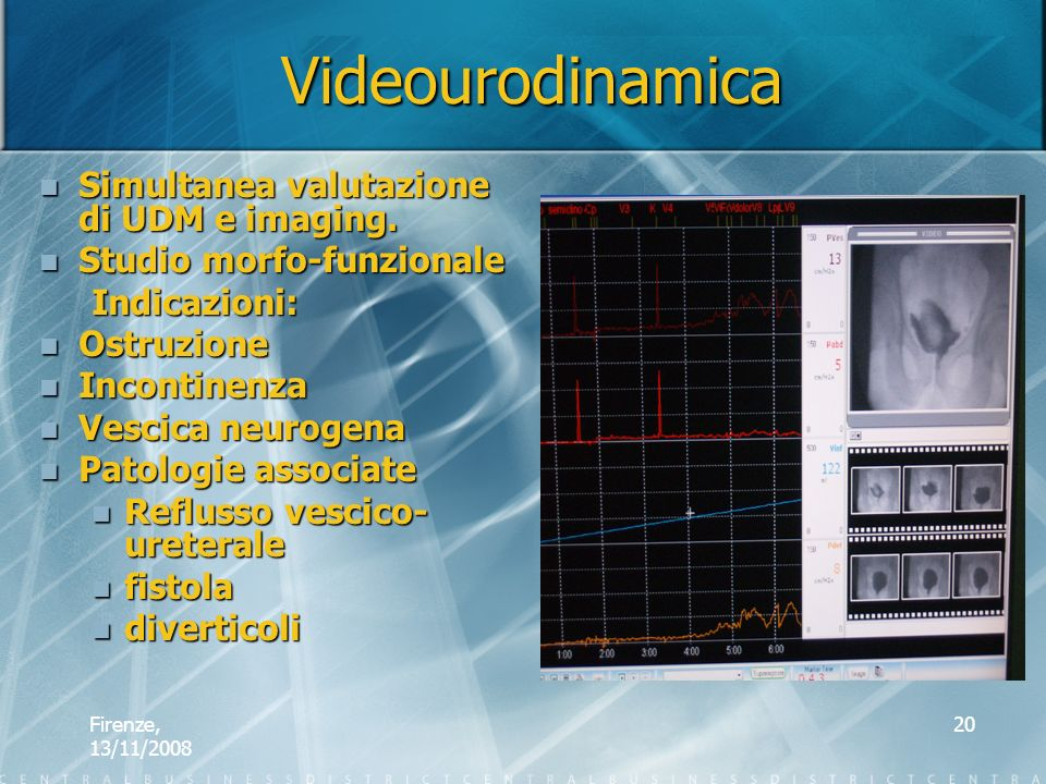 Videourodinamica Simultanea valutazione di UDM e imaging.