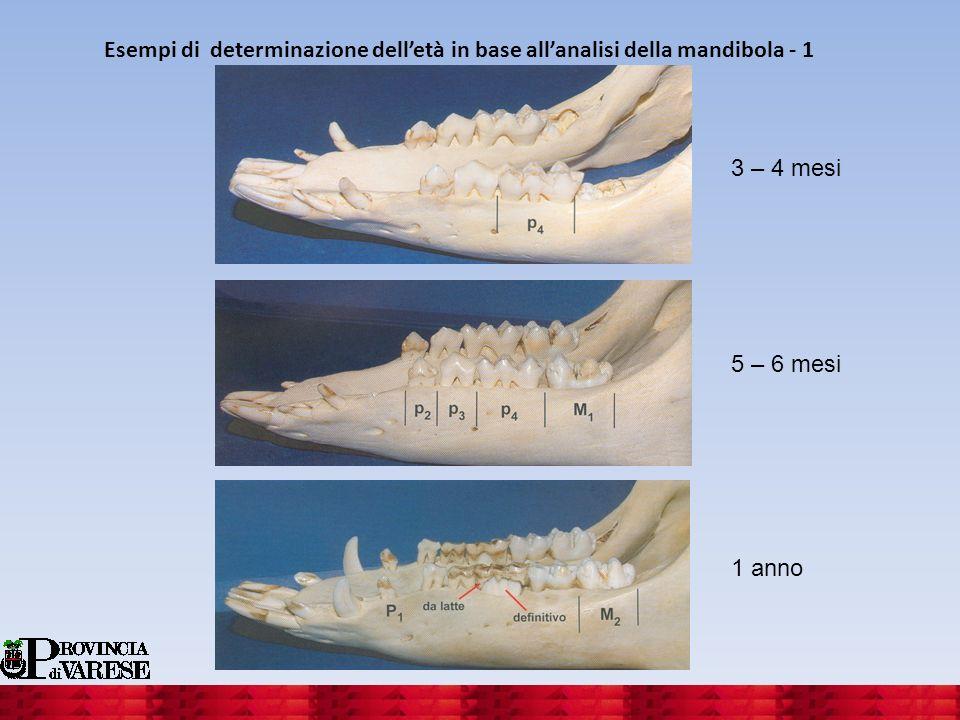 Esempi di determinazione dell'età in base all'analisi della mandibola - 1