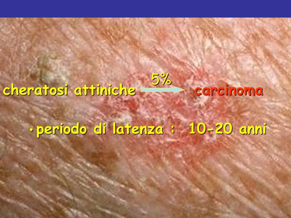 5% cheratosi attiniche carcinoma periodo di latenza : 10-20 anni