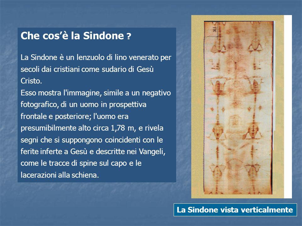 Che cos'è la Sindone La Sindone è un lenzuolo di lino venerato per secoli dai cristiani come sudario di Gesù Cristo.