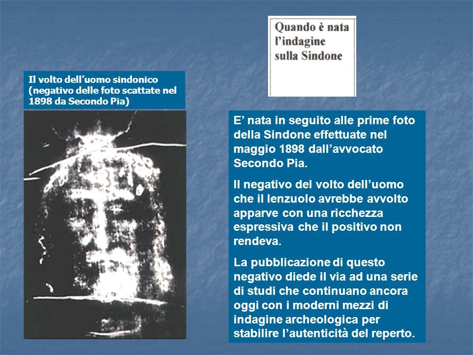 Il volto dell'uomo sindonico (negativo delle foto scattate nel 1898 da Secondo Pia)