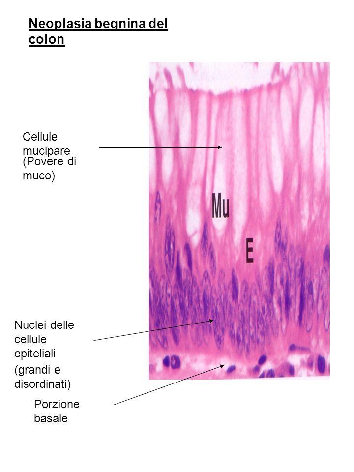 Neoplasia begnina del colon