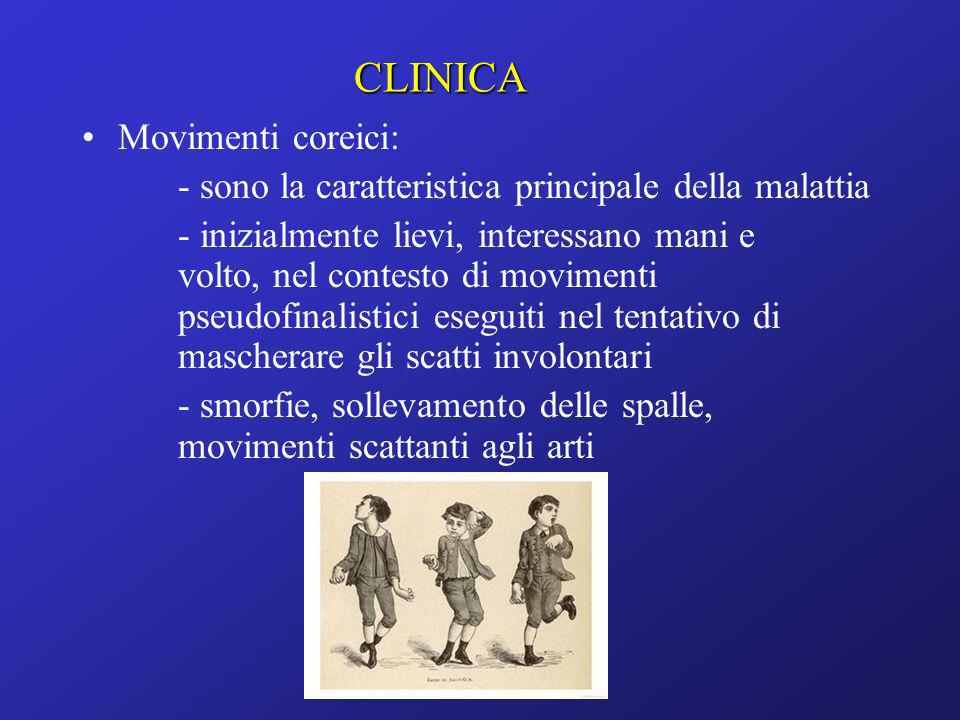 CLINICA Movimenti coreici: